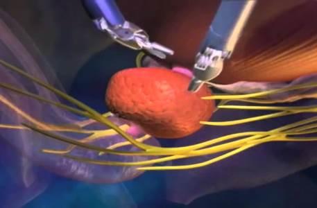 Миниатюрные роботы займутся тонкой работой в телах пациентов
