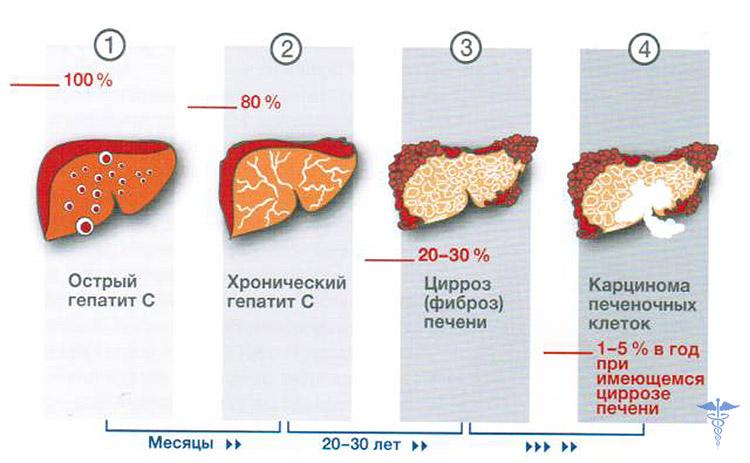 Гепатит С: как передается от человека к человеку