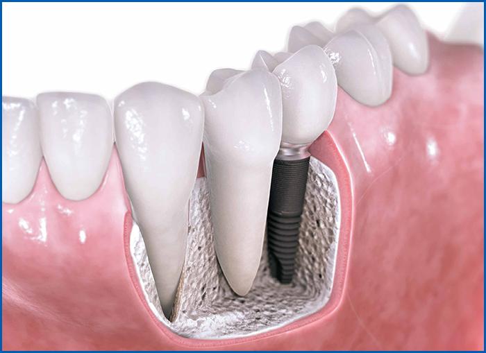Как делают импланты зубов