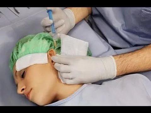 Тимпанопластика: что это за операция и как она проводится