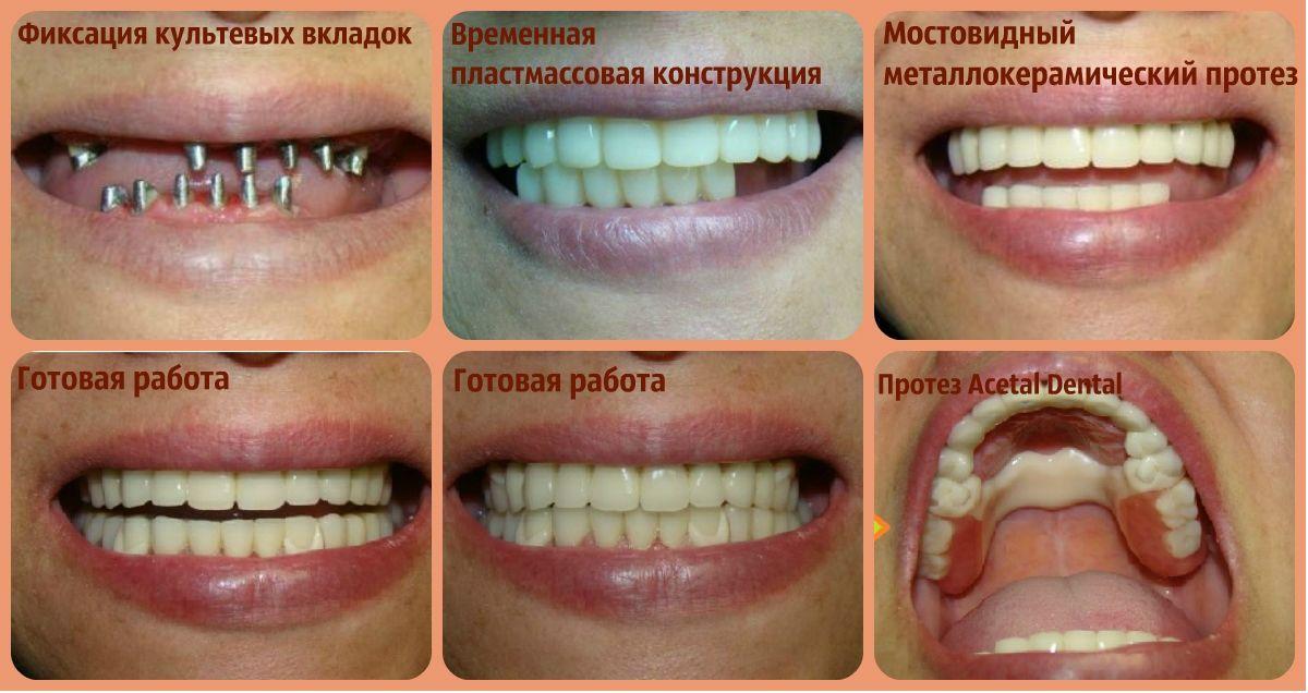 Этапы протезирования зубов