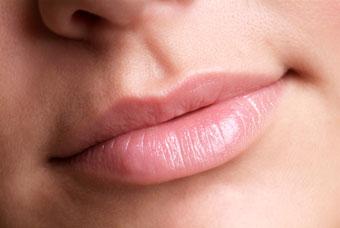 Потрескавшиеся губы. Лечение