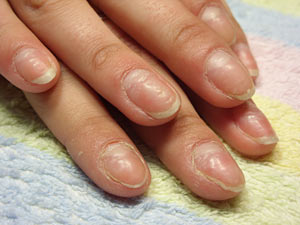 Уход за ногтями: рецепты против расслаивания и ломкости ногтей