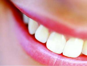 Как достичь безупречной улыбки