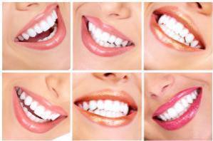 Отбеливание зубов просто необходимо