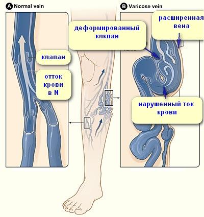 Предотвращение варикозной болезни